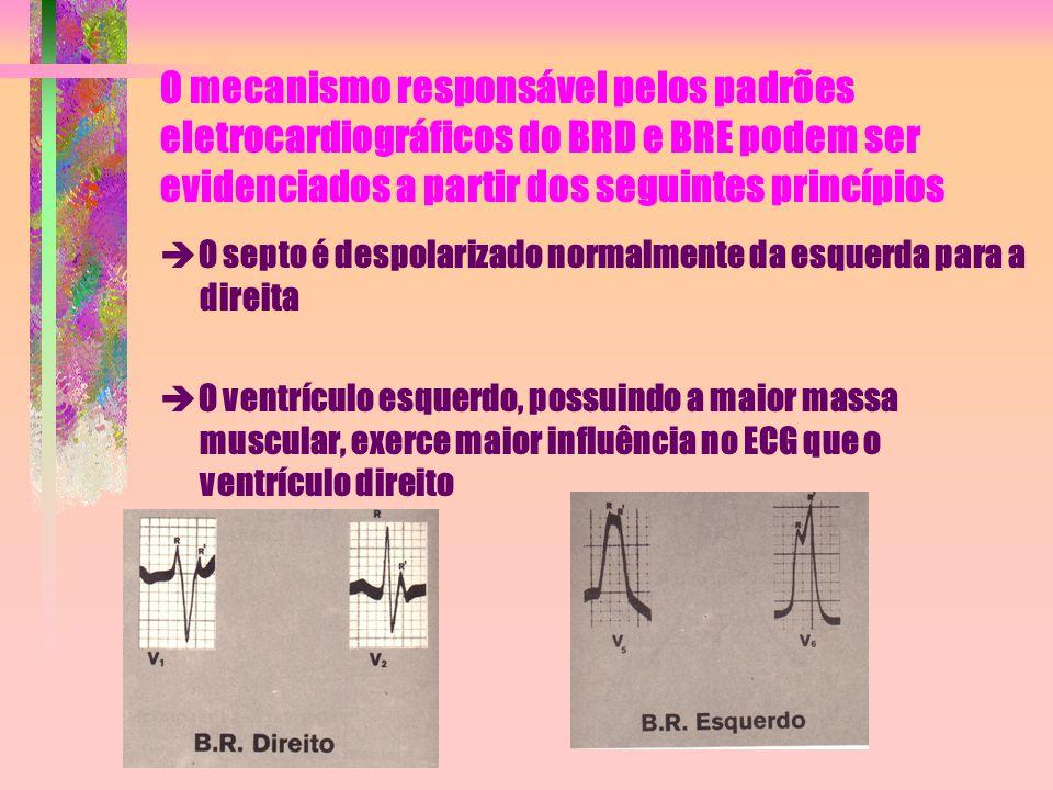 O mecanismo responsável pelos padrões eletrocardiográficos do BRD e BRE podem ser evidenciados a partir dos seguintes princípios