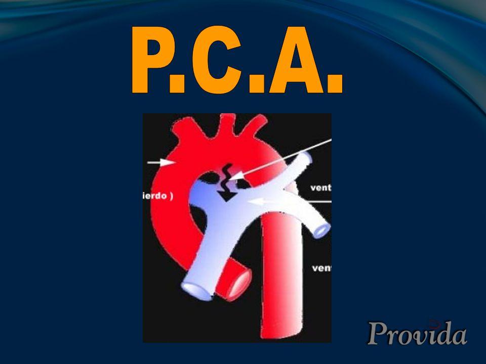 P.C.A.