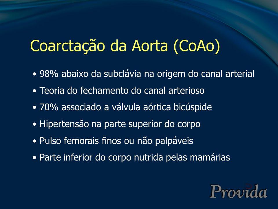 Coarctação da Aorta (CoAo)