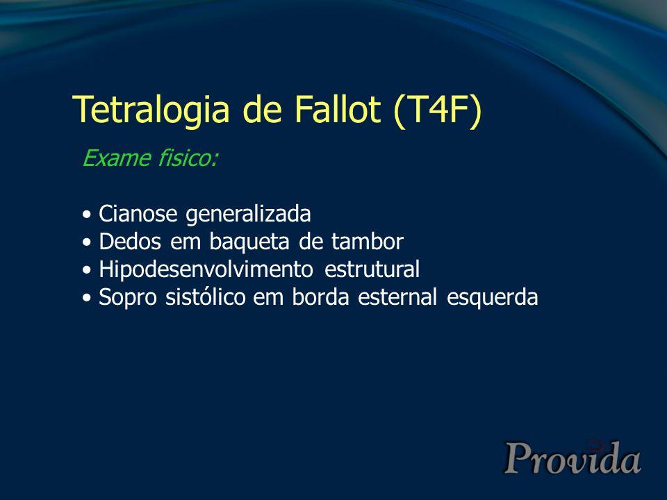 Tetralogia de Fallot (T4F)