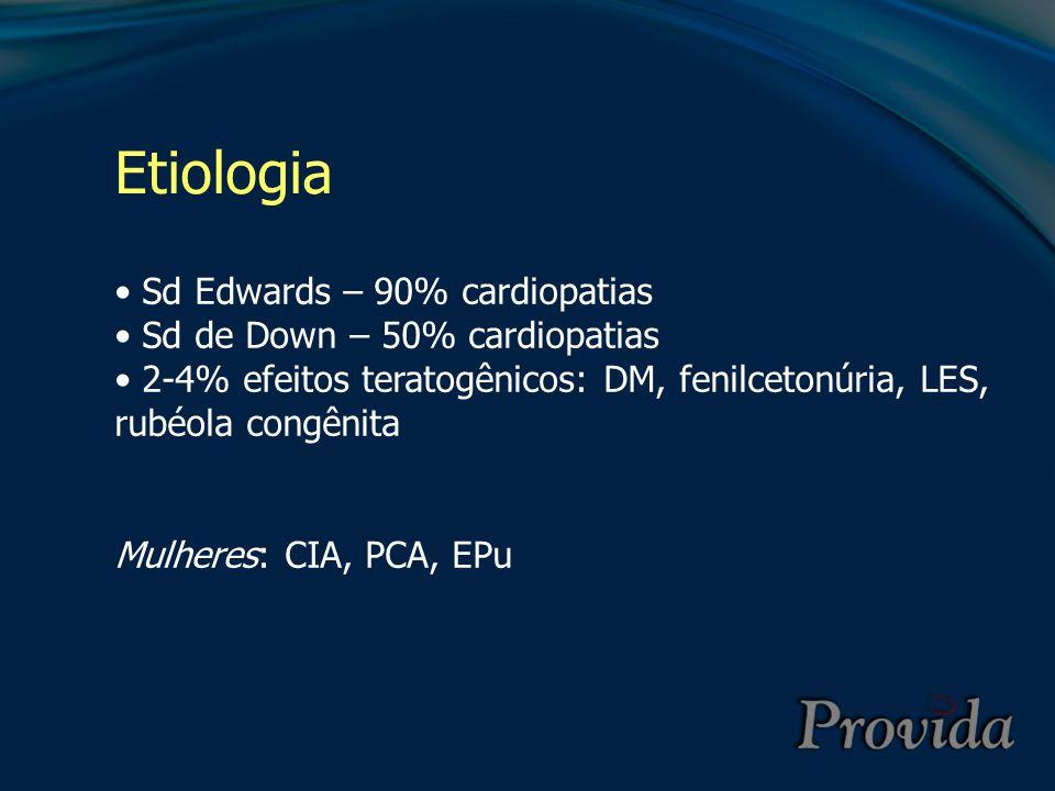 Etiologia Sd Edwards – 90% cardiopatias Sd de Down – 50% cardiopatias