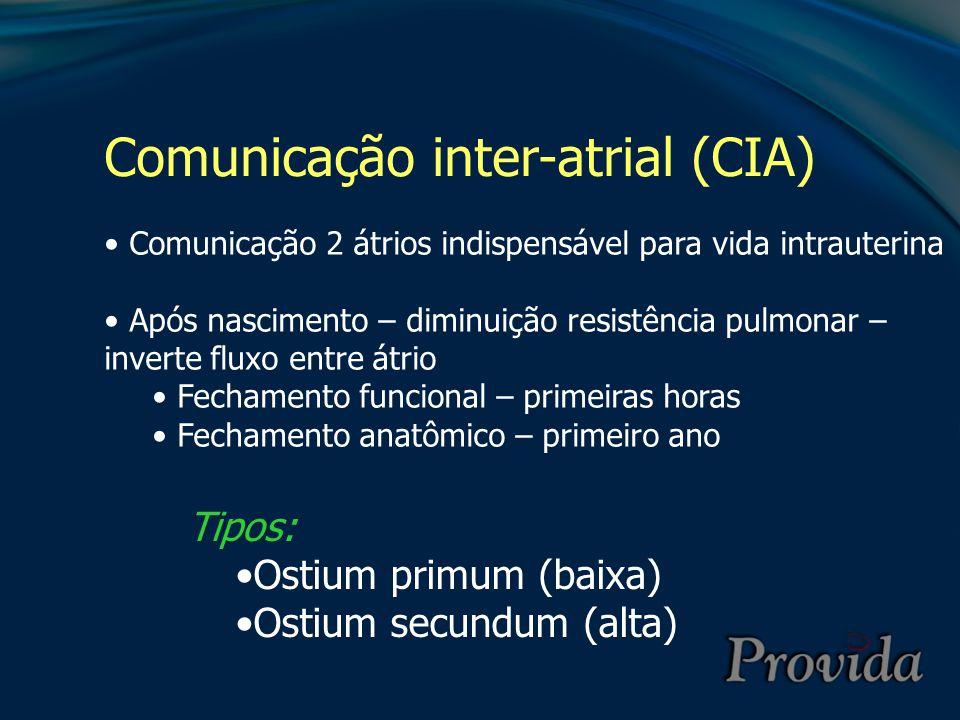 Comunicação inter-atrial (CIA)