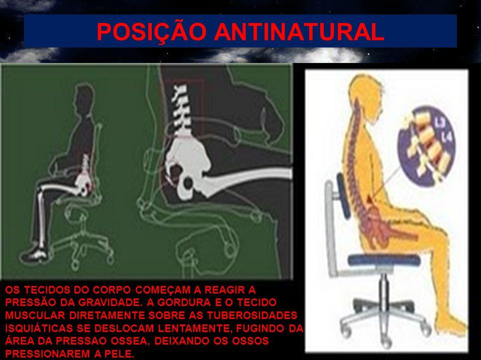 POSIÇÃO ANTINATURAL