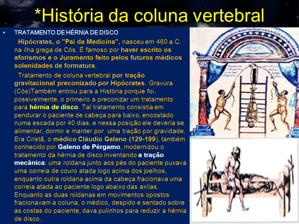 *História da coluna vertebral