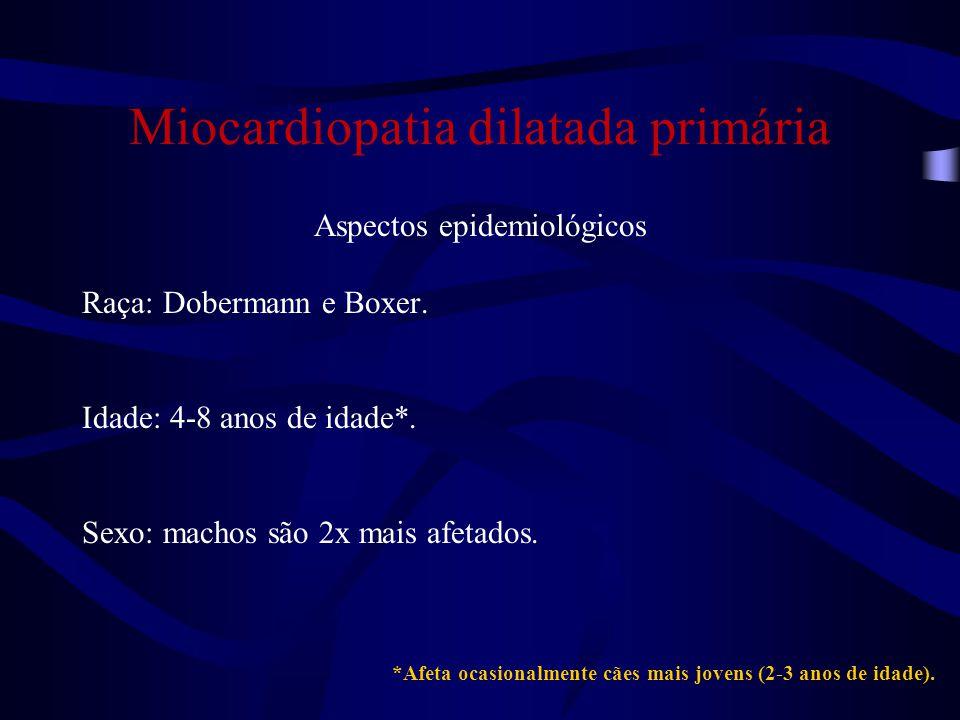 Miocardiopatia dilatada primária