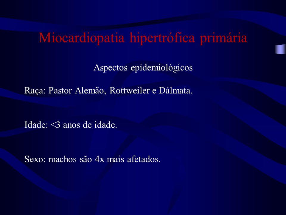 Miocardiopatia hipertrófica primária