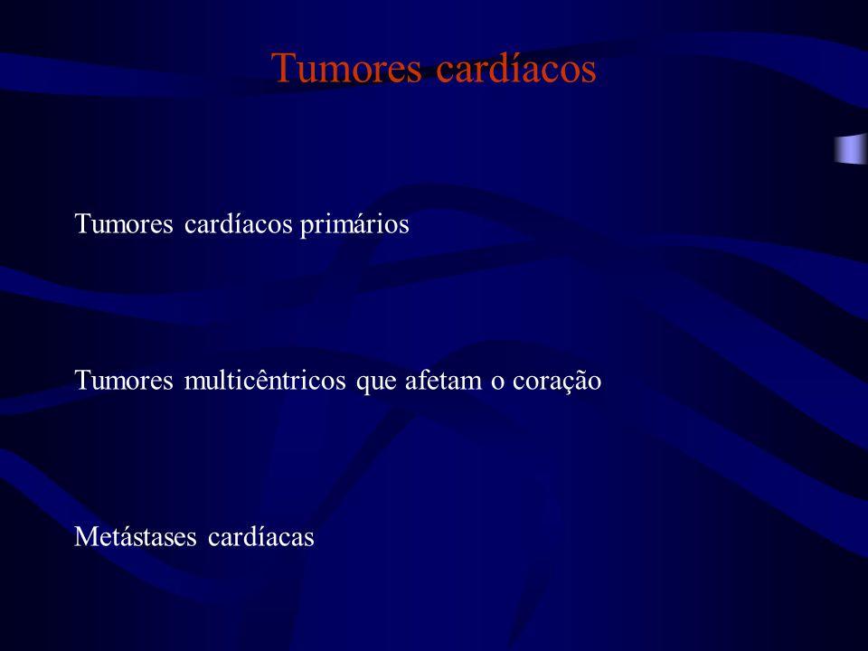 Tumores cardíacos Tumores cardíacos primários