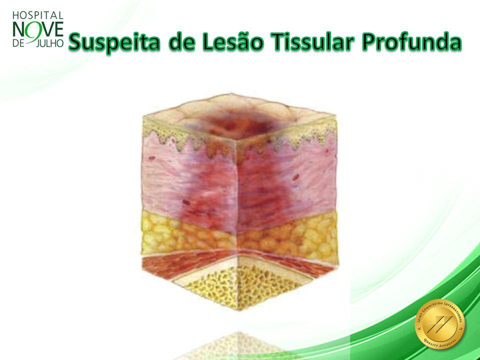 Suspeita de Lesão Tissular Profunda