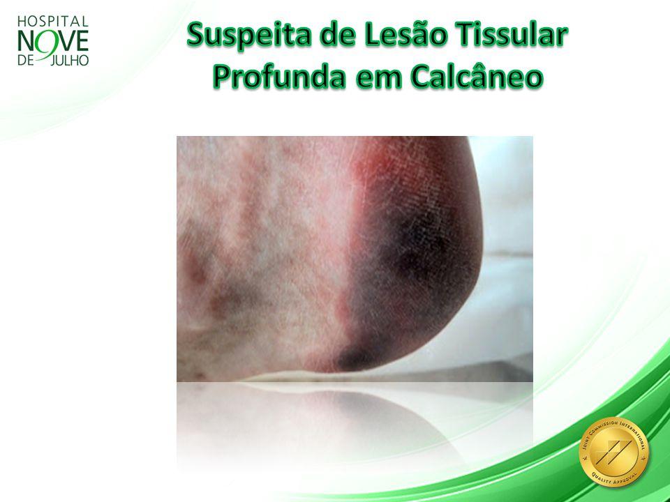 Suspeita de Lesão Tissular Profunda em Calcâneo