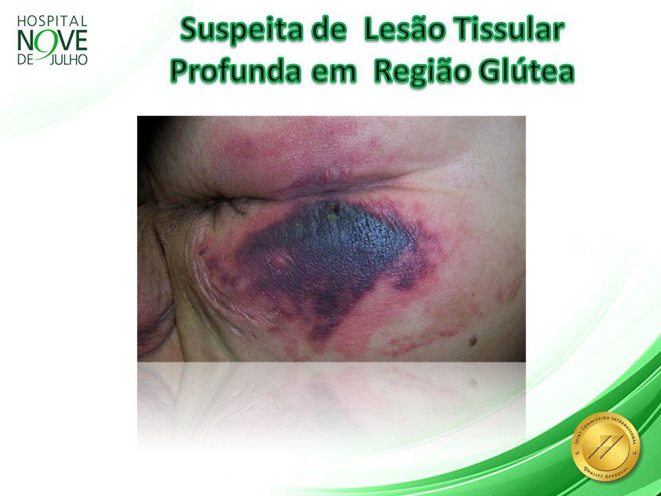 Suspeita de Lesão Tissular Profunda em Região Glútea