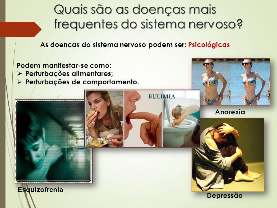 Quais são as doenças mais frequentes do sistema nervoso