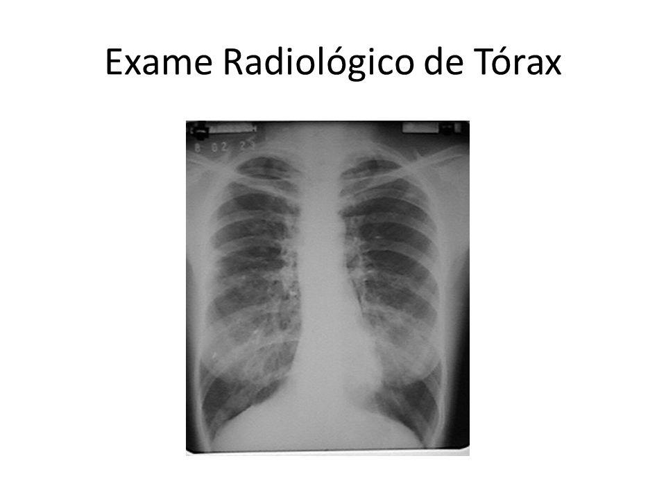 Exame Radiológico de Tórax