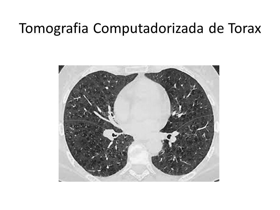 Tomografia Computadorizada de Torax