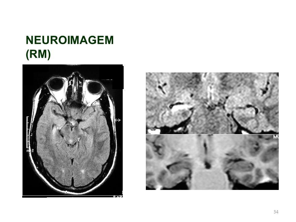 NEUROIMAGEM (RM)