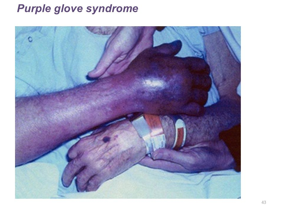 Purple glove syndrome