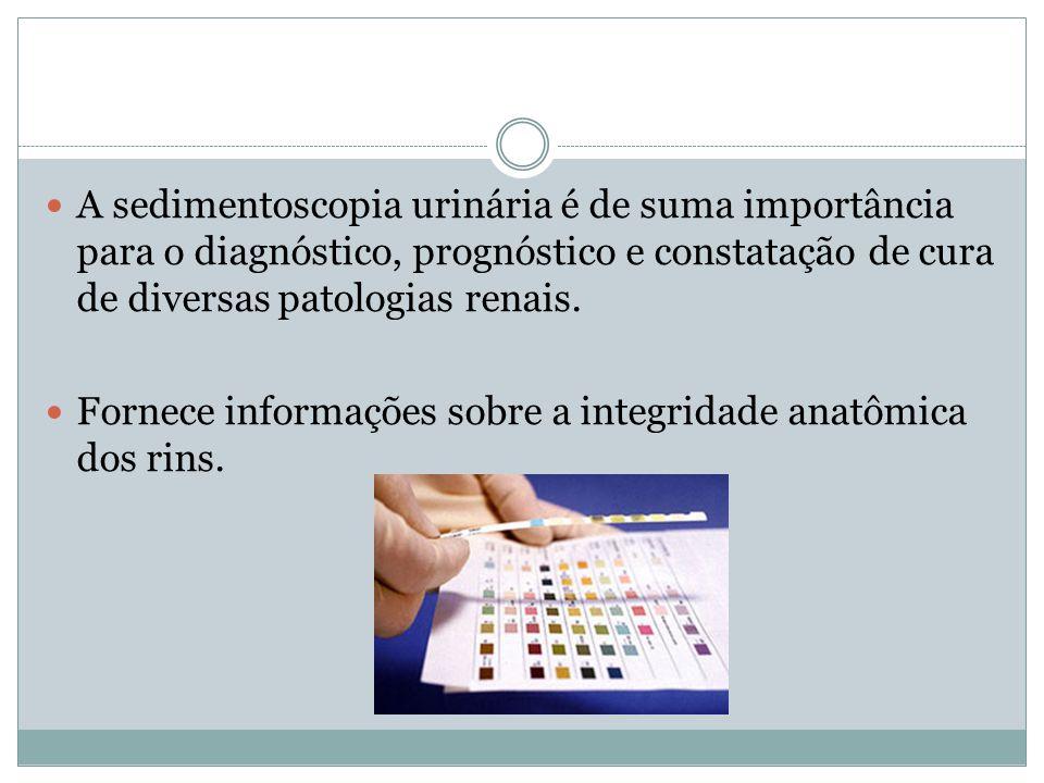 A sedimentoscopia urinária é de suma importância para o diagnóstico, prognóstico e constatação de cura de diversas patologias renais.