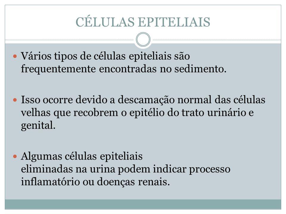 CÉLULAS EPITELIAIS Vários tipos de células epiteliais são frequentemente encontradas no sedimento.