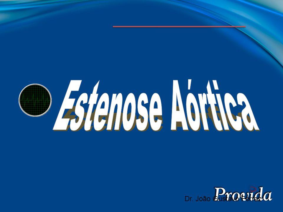Estenose Aórtica Dr. João Gustavo Ferraz