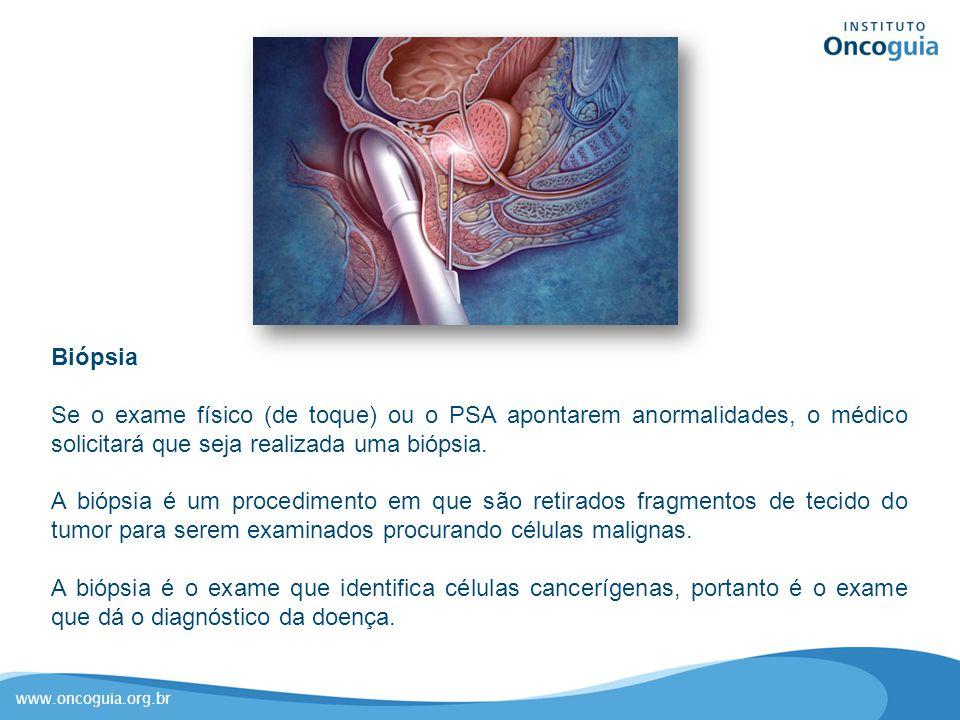 Biópsia Se o exame físico (de toque) ou o PSA apontarem anormalidades, o médico solicitará que seja realizada uma biópsia.