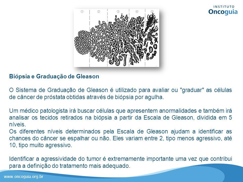 Biópsia e Graduação de Gleason