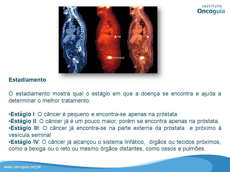 Estadiamento O estadiamento mostra qual o estágio em que a doença se encontra e ajuda a determinar o melhor tratamento: