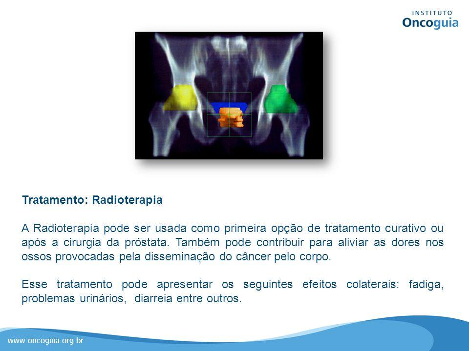 Tratamento: Radioterapia