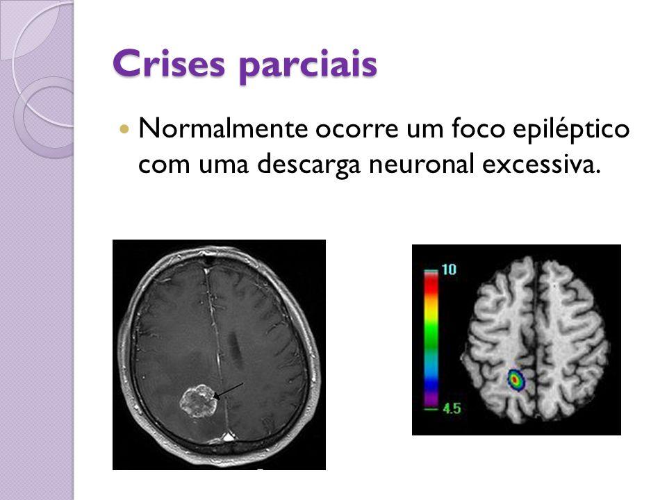 Crises parciais Normalmente ocorre um foco epiléptico com uma descarga neuronal excessiva.