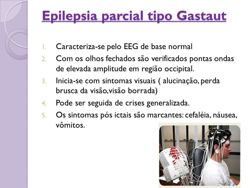 Epilepsia parcial tipo Gastaut
