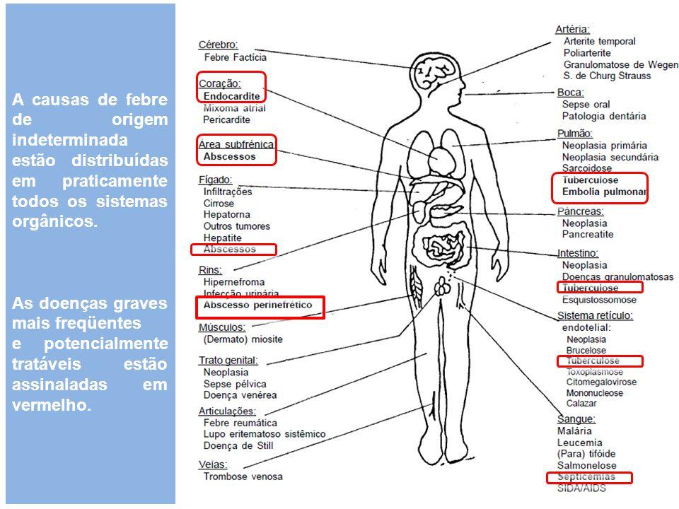A causas de febre de origem indeterminada