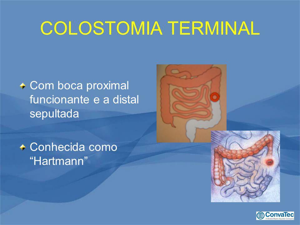 COLOSTOMIA TERMINAL Com boca proximal funcionante e a distal sepultada