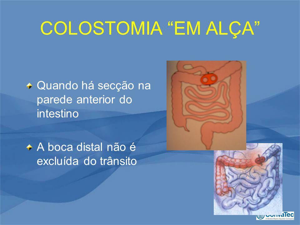 COLOSTOMIA EM ALÇA Quando há secção na parede anterior do intestino