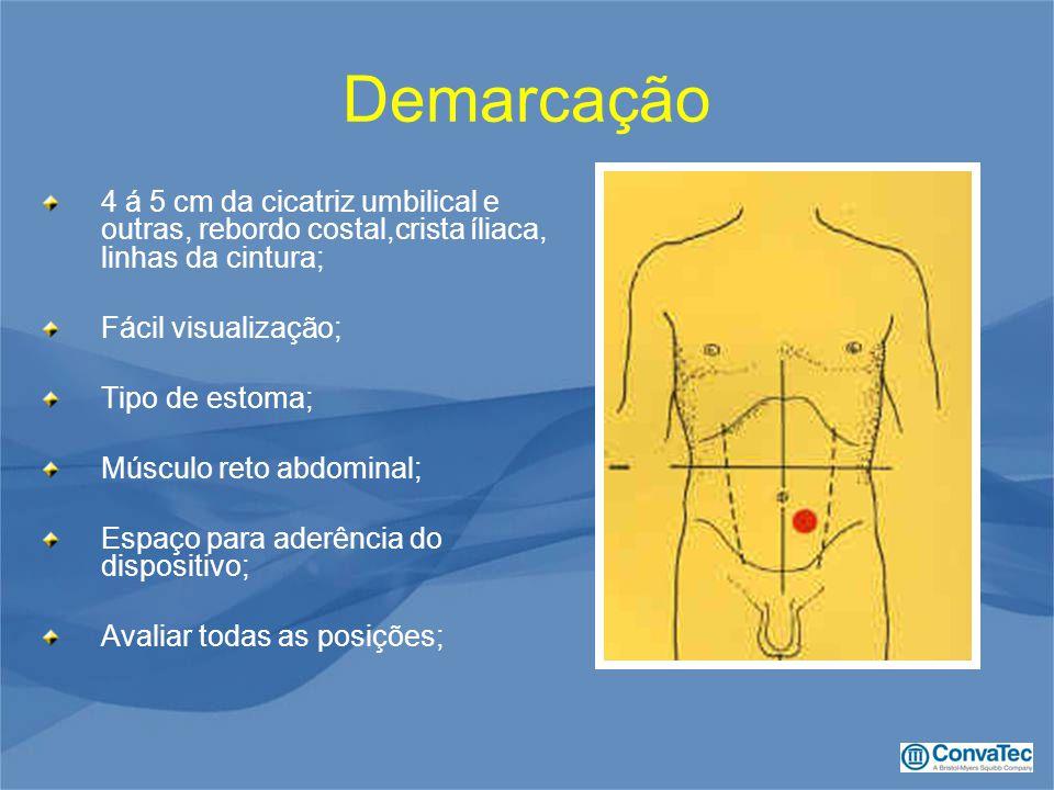 Demarcação 4 á 5 cm da cicatriz umbilical e outras, rebordo costal,crista íliaca, linhas da cintura;