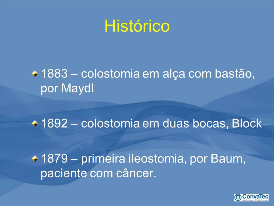 Histórico 1883 – colostomia em alça com bastão, por Maydl