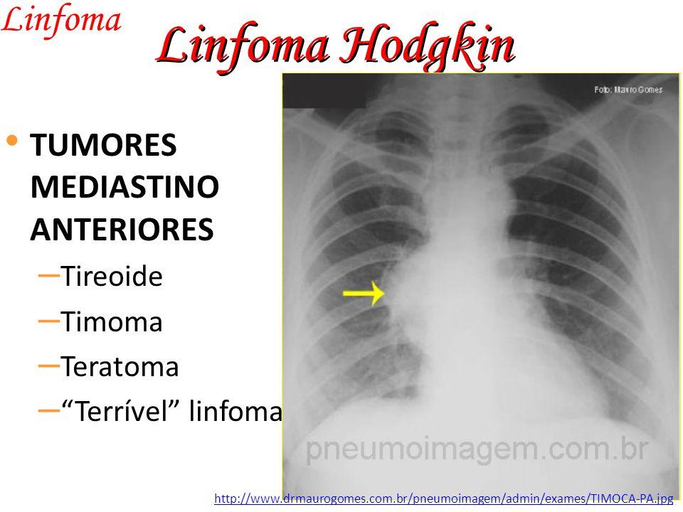 Linfoma Hodgkin Linfoma TUMORES MEDIASTINO ANTERIORES Tireoide Timoma