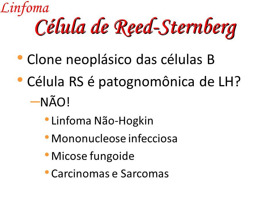 Célula de Reed-Sternberg