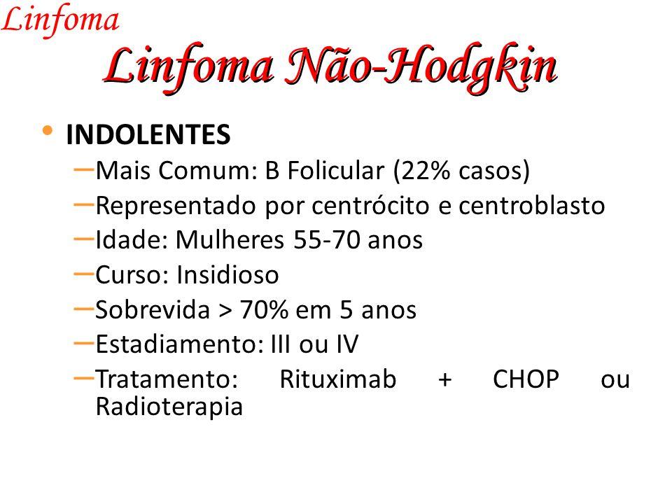 Linfoma Não-Hodgkin Linfoma INDOLENTES
