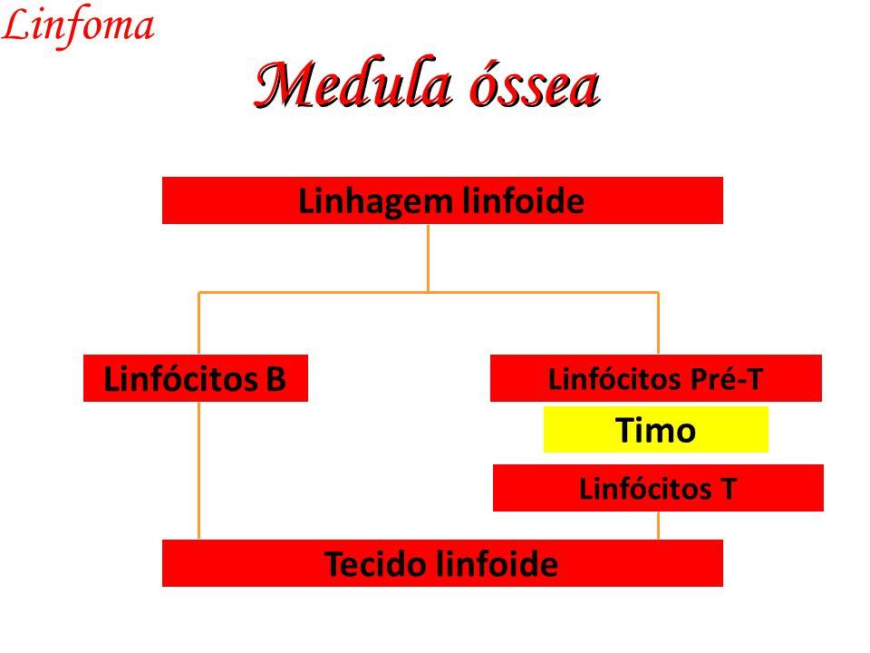 Medula óssea Linfoma Linhagem linfoide Linfócitos B Timo
