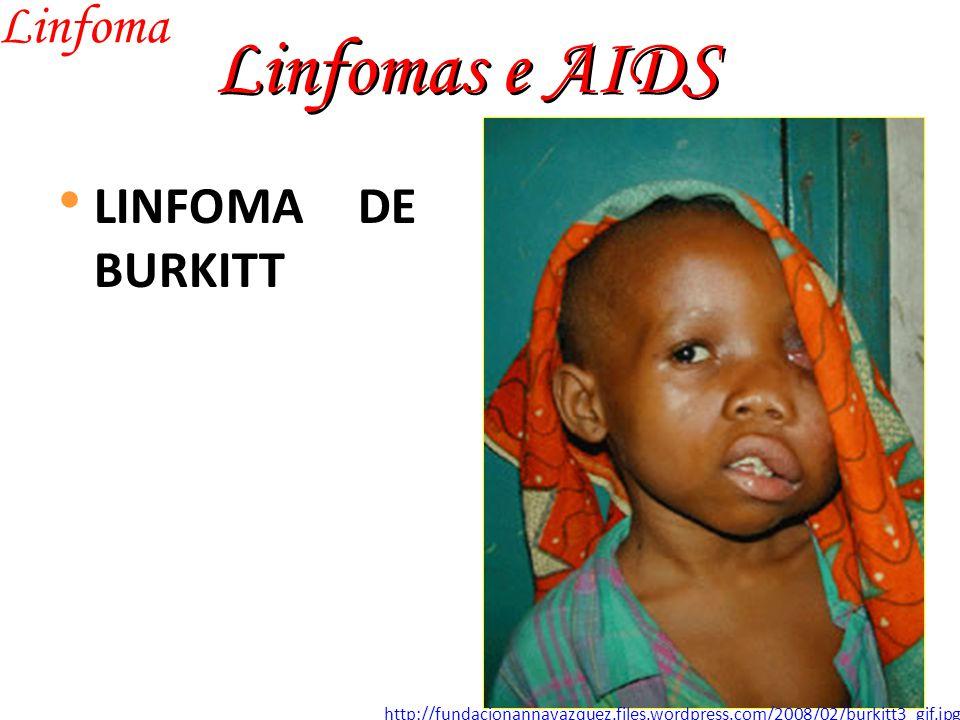 Linfomas e AIDS Linfoma LINFOMA DE BURKITT