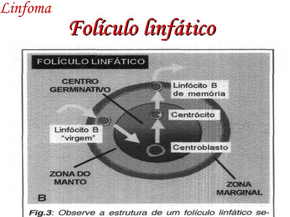 Linfoma Folículo linfático