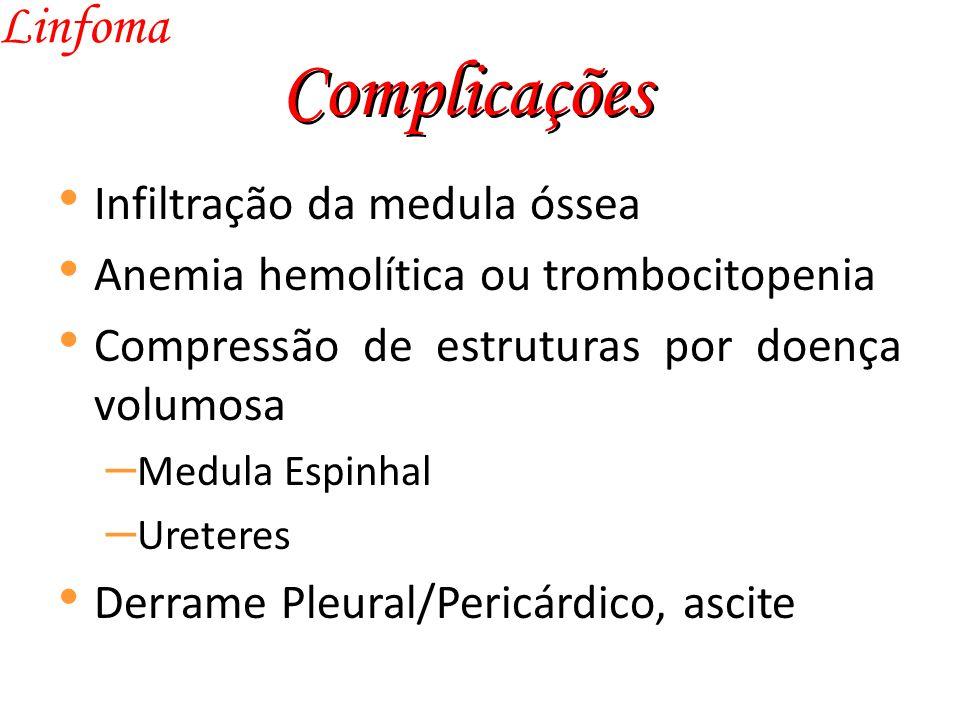 Complicações Linfoma Infiltração da medula óssea
