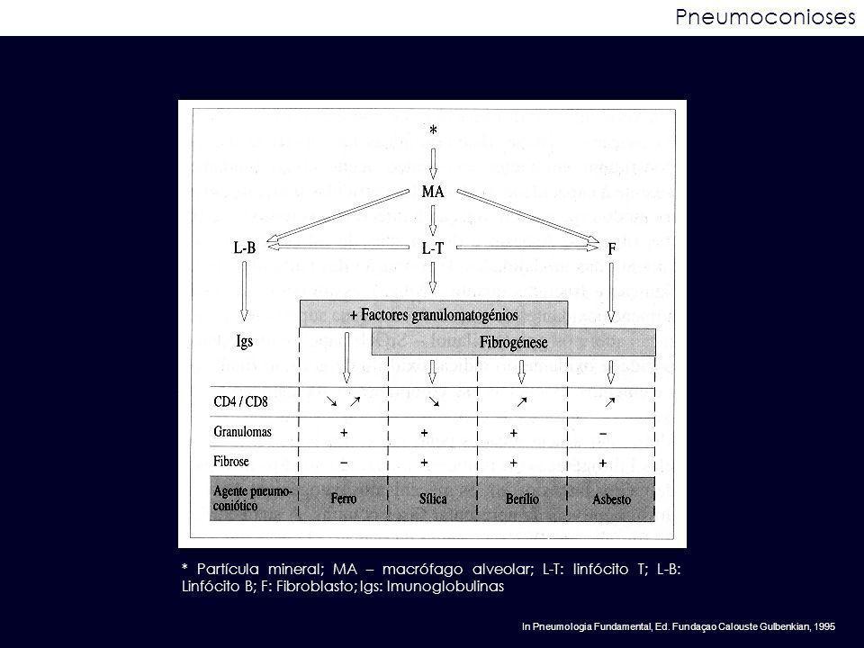 Pneumoconioses * Partícula mineral; MA – macrófago alveolar; L-T: linfócito T; L-B: Linfócito B; F: Fibroblasto; Igs: Imunoglobulinas.