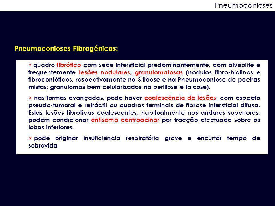 Pneumoconioses Fibrogénicas: