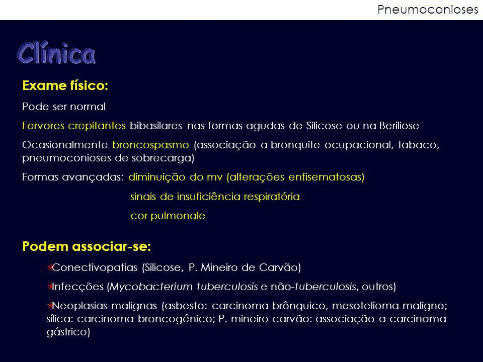 Clínica Exame físico: Podem associar-se: Pneumoconioses
