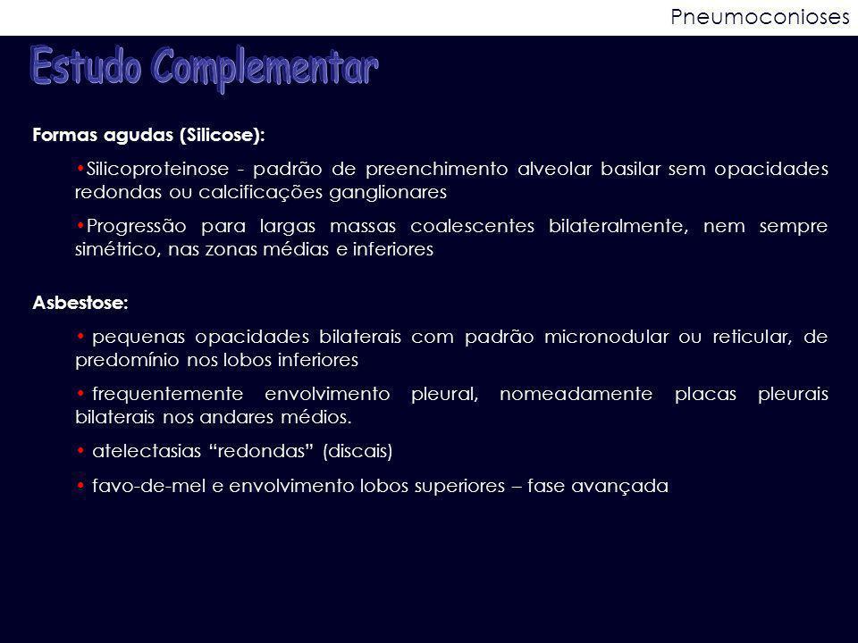 Estudo Complementar Pneumoconioses Formas agudas (Silicose):