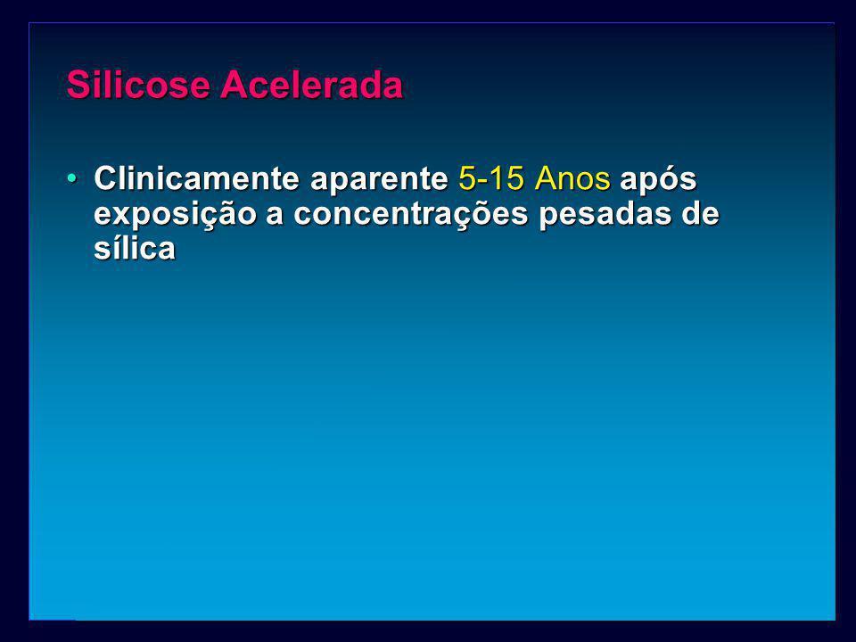 Silicose Acelerada Clinicamente aparente 5-15 Anos após exposição a concentrações pesadas de sílica