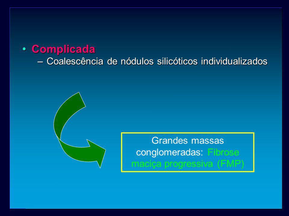 Grandes massas conglomeradas: Fibrose maciça progressiva (FMP)