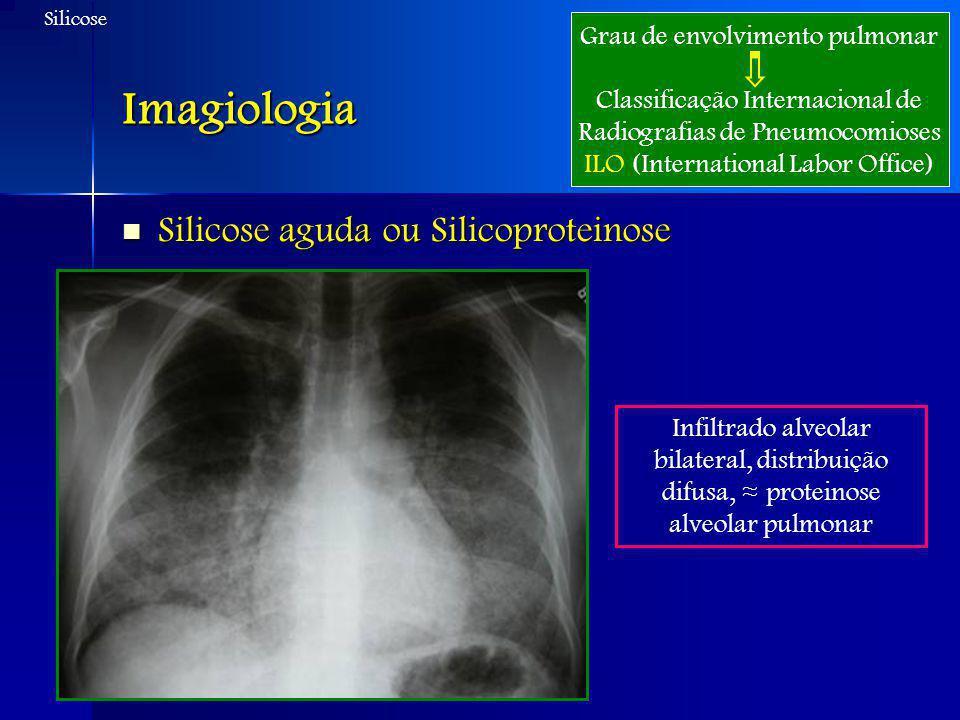 Imagiologia Silicose aguda ou Silicoproteinose