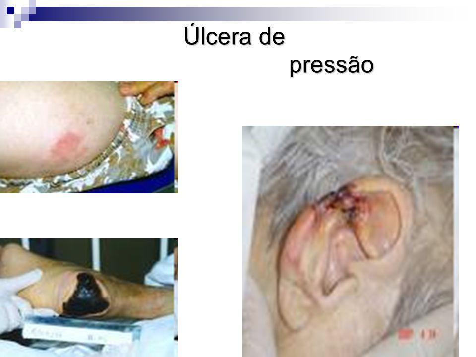 Úlcera de pressão
