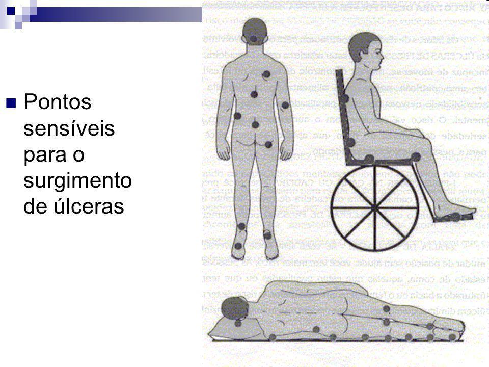 Pontos sensíveis para o surgimento de úlceras