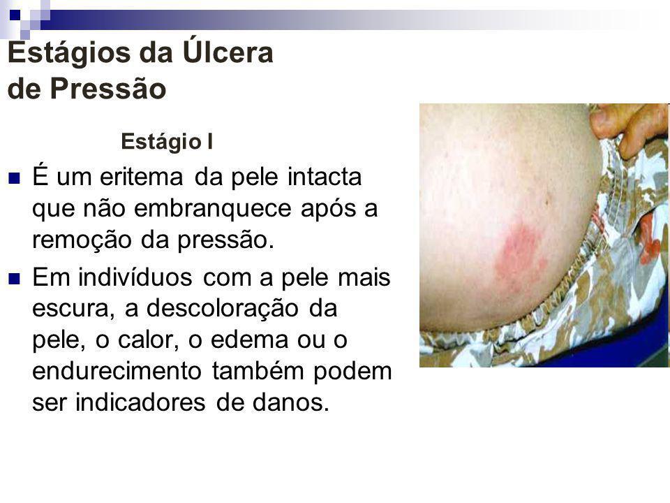 Estágios da Úlcera de Pressão Estágio I